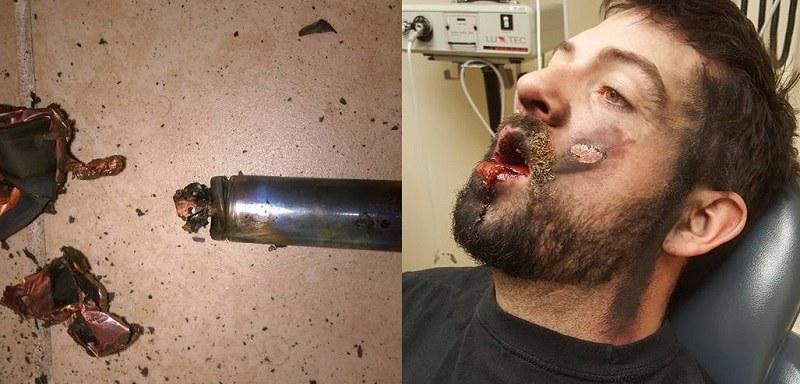 Wybuch e-papierosa /Andrew Hall /Facebook