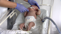 """""""Wydarzenia"""": Wirus RSV szczególnie groźny dla niemowląt. Ogromna ilość małych pacjentów"""