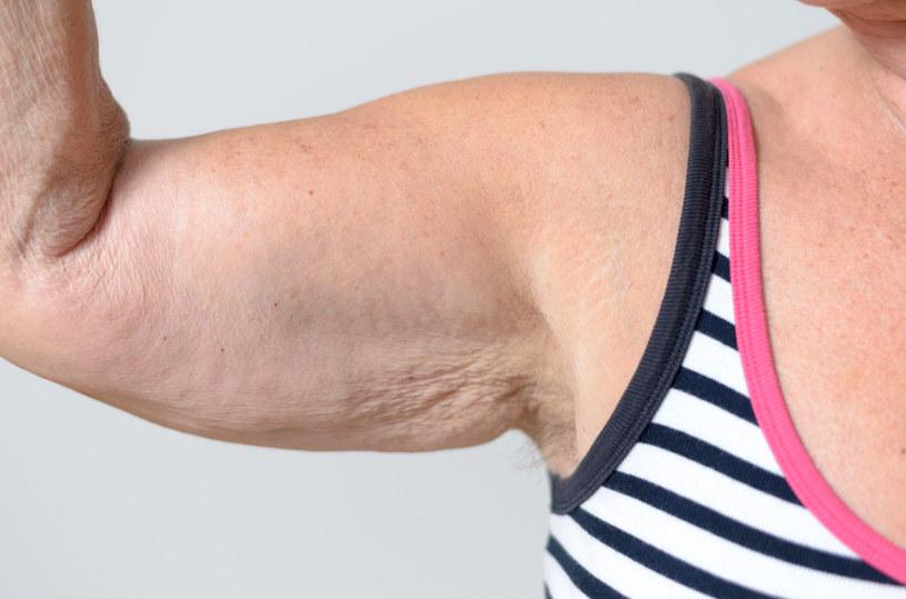 Wygląd ramion ciężko jest poprawić samymi ćwiczeniami /123RF/PICSEL
