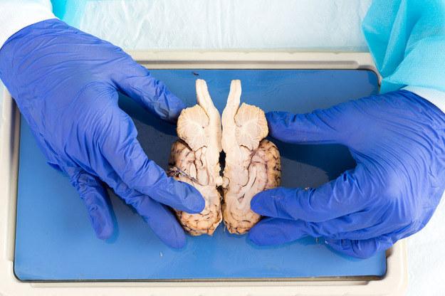 Wyhodowanie mózgu w laboratorium to kwestia czasu /123RF/PICSEL