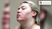 Wyjątkowe zdjęcia osób zmagających się z chorobami skóry