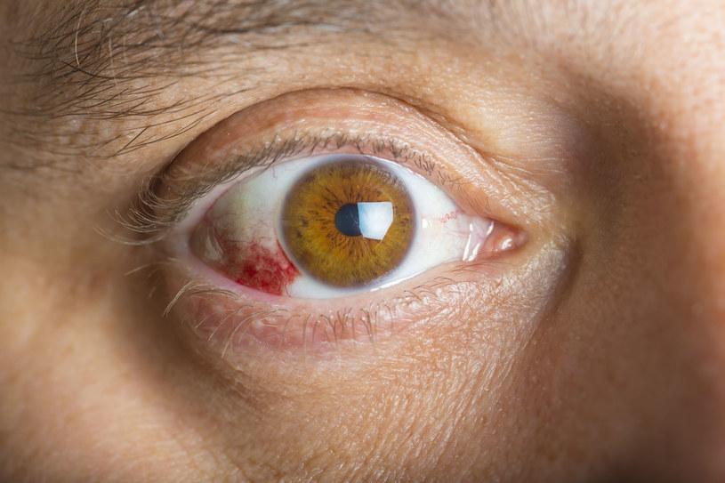 Wylew w oku to nie tylko problem kosmetyczny /123RF/PICSEL
