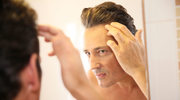 Wypadanie włosów u mężczyzn. Jak z nim walczyć?