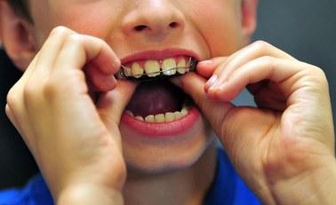 Wyprostuj zęby i poczuj się lepiej!