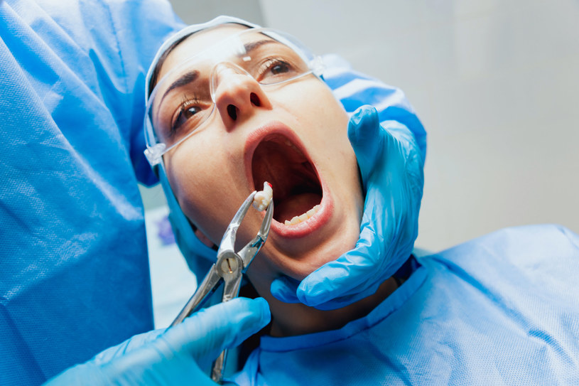 Wyrzynające się w nieprawidłowy sposób zęby mogą poważnie zagrozić zdrowiu jamy ustnej - wtedy należy je usunąć /123RF/PICSEL