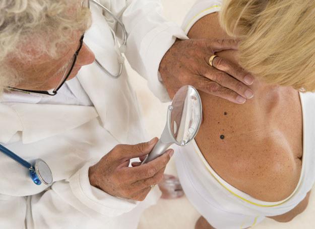 Wysoka temperatura i promieniowanie UV powodują osłabienie odporności skóry /123RF/PICSEL