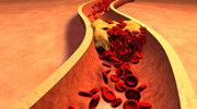 Wysoki cholesterol u szczupłych