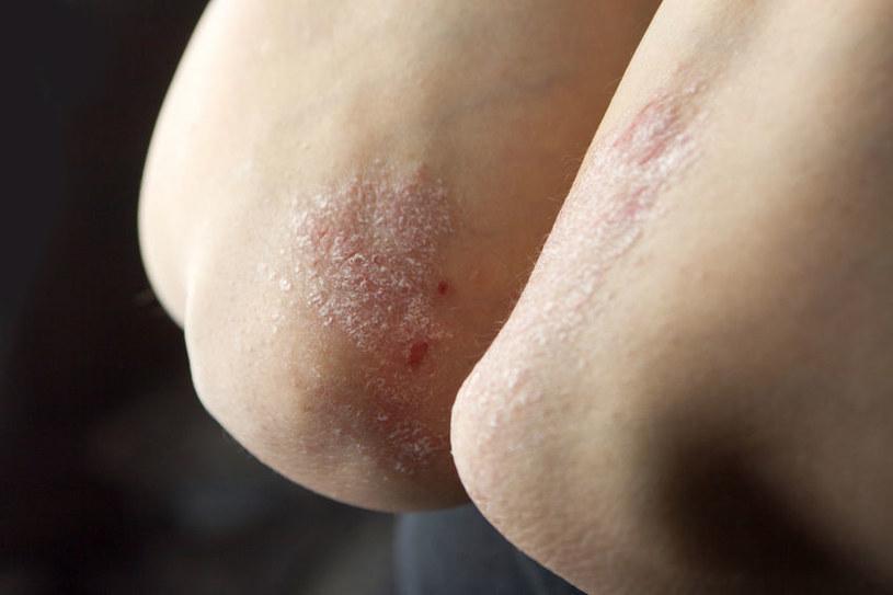 Wysuszona i łuszcząca się skóra to jeden z objawów niedoczynności tarczycy /123RF/PICSEL