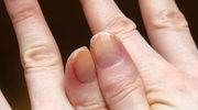 Wzmacniamy zniszczone paznokcie