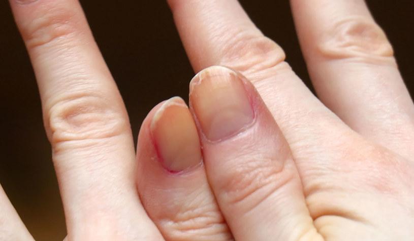 Z pomocą dla zniszczonych paznokci przyjdą odżywki i domowe płukanki /123RF/PICSEL