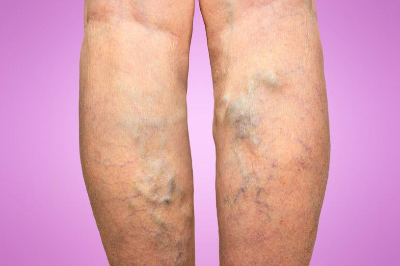 Zaawansowana choroba to zwykle bagaż na całe życie, dlatego warto zadbać, by żylaki nie pojawiły się w ogóle /123RF/PICSEL