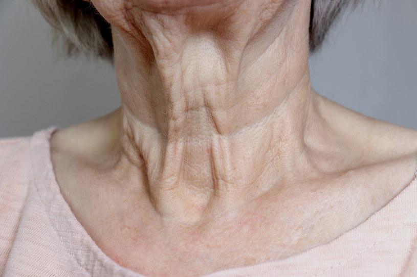 """Zabieg HIFU można wykorzystać do wygładzania skóry szyi - jednego z najbardziej """"problematycznych"""" części ciała, w szczególności u kobiet po 50. /123RF/PICSEL"""