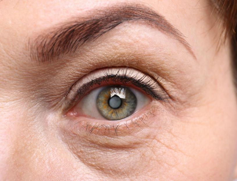 Zaćma to naturalne mętnienie soczewki w oku /123RF/PICSEL