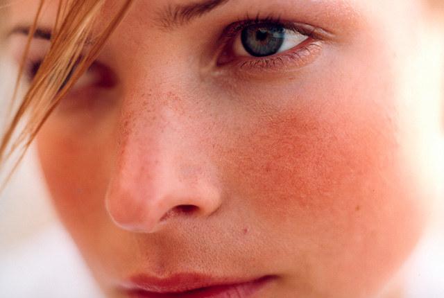 zaczerwienienie na twarzy /© Photogenica