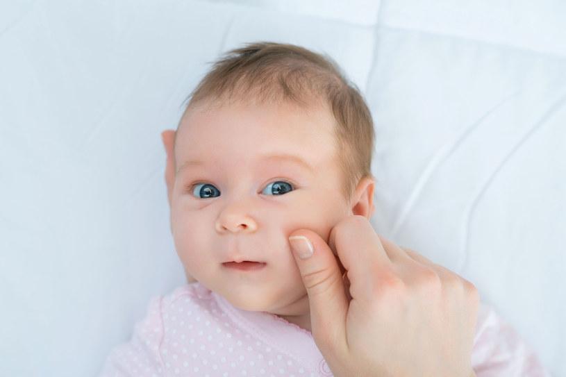 """Zaczerwienione, błyszczące, jakby """"polakierowane"""" policzki nie są oznaką zdrowia, lecz świadczą zwykle o alergii pokarmowej /123RF/PICSEL"""