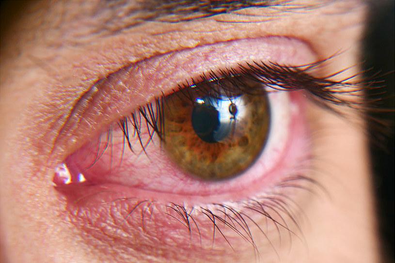 Zaczerwienione oko zawsze powinno wzbudzić nasz niepokój /123RF/PICSEL