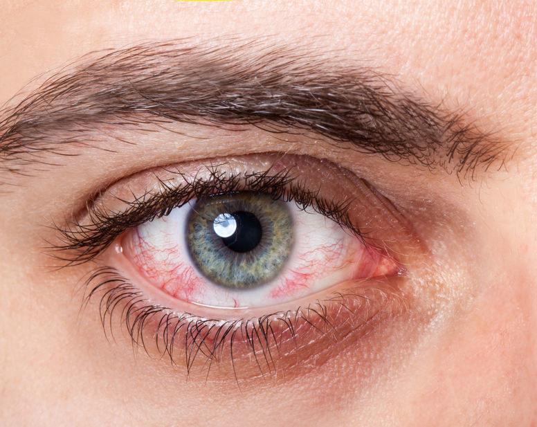 Zaczerwienione oko /©123RF/PICSEL