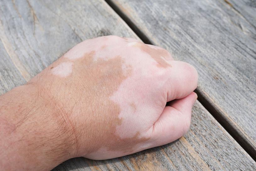 Zaczyna się od rozprzestrzeniających się białych plamek często o brzegach ciemniejszych od skóry /123RF/PICSEL