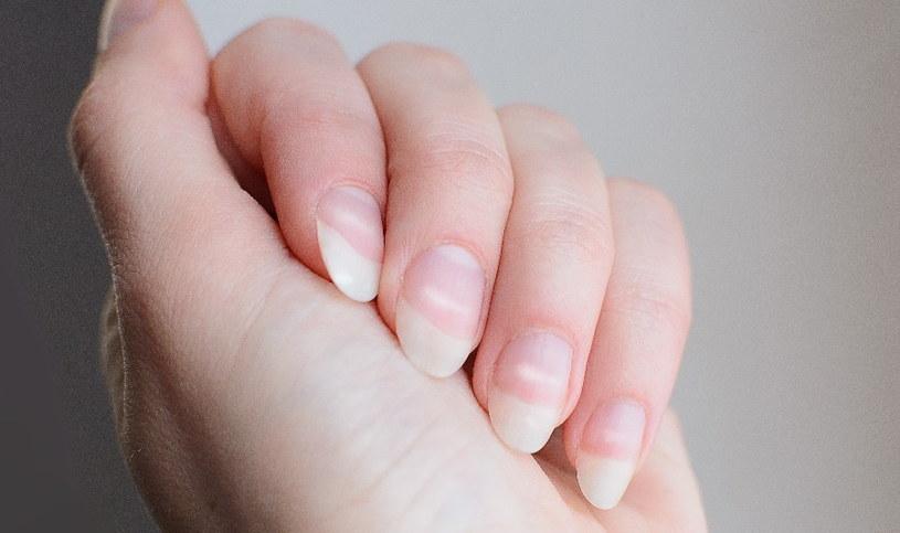 Zadbaj o kondycję paznokci /123RF/PICSEL