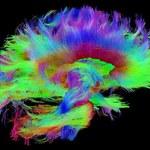 Zadziwiające różnice między mózgami kobiet i mężczyzn