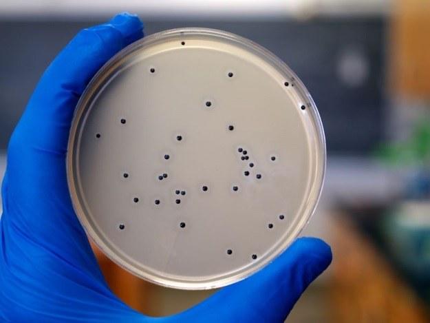 Zakażenia bakteryjne wkrótce przestaną stanowić zagrożenie? /123RF/PICSEL