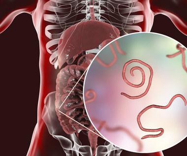 Zakażenia pasożytami: Objawy i naturalne sposoby leczenia