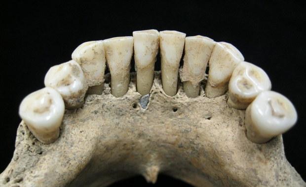 Zakonnica z niebieskimi zębami. Naukowcy rozwiązali średniowieczną zagadkę