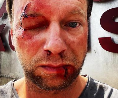 Zakrwawiony Maciej Stuhr. Aktor pokazał zdjęcie na Instagramie