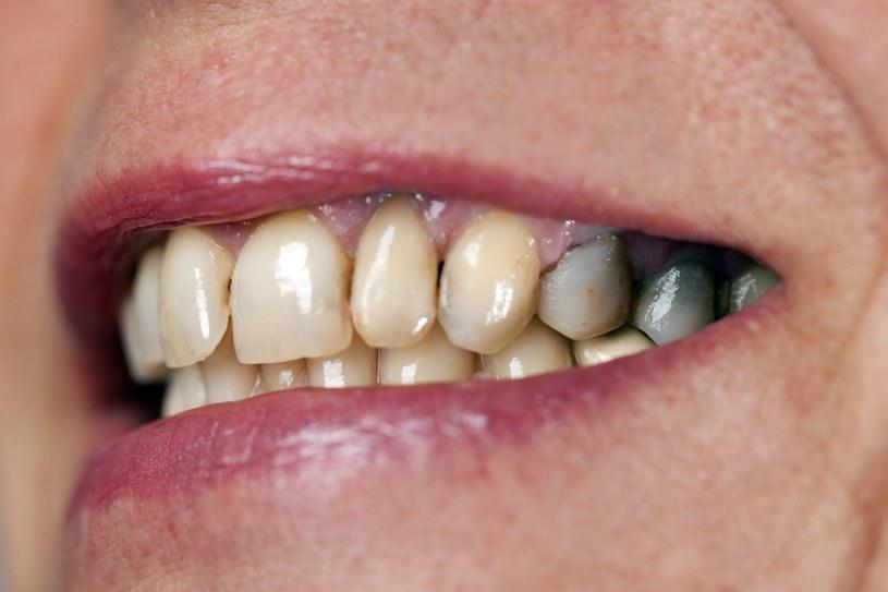 Zaniedbane zęby mogą doprowadzić do przewlekłych stanów zapalnych organizmu /123RF/PICSEL