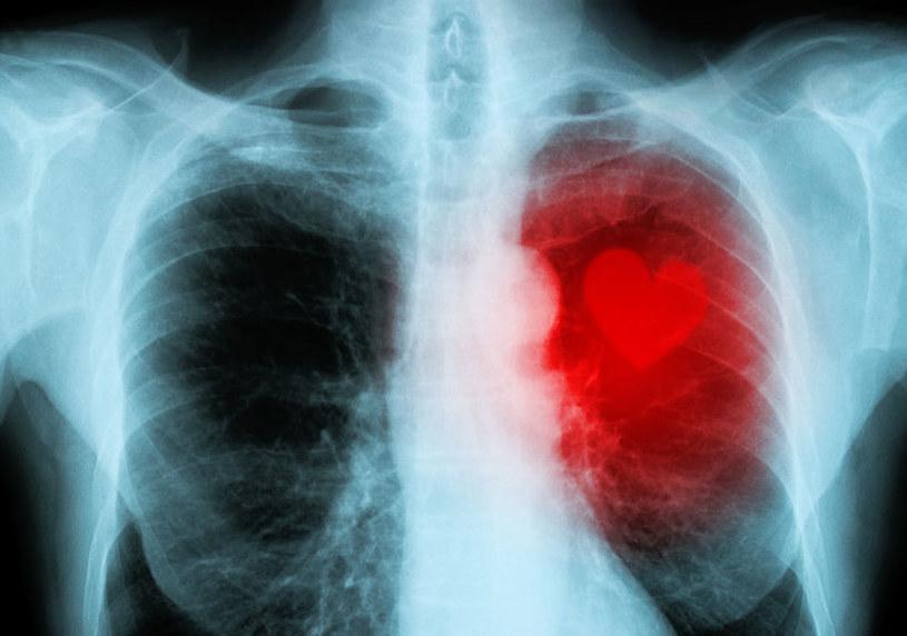 Zapalenie mięśnia sercowego /©123RF/PICSEL