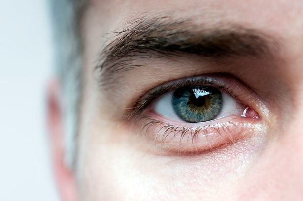 zapalenie nerwu wzrokowego /© Photogenica