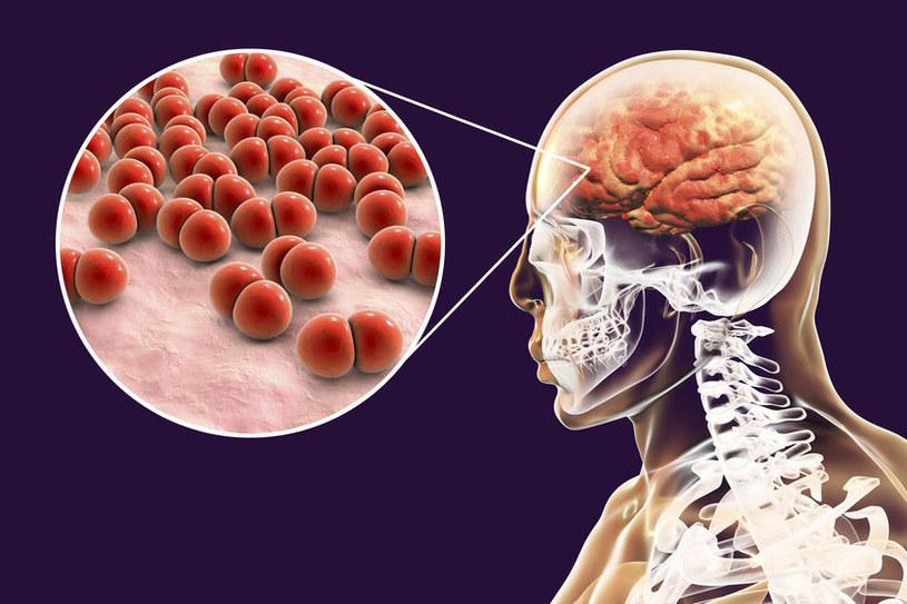 Zapalenie opon mózgowych /©123RF/PICSEL