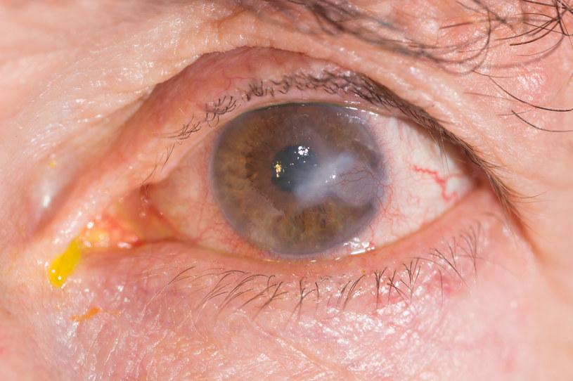 Zapalenie rogówki utrudnia widzenie /123RF/PICSEL