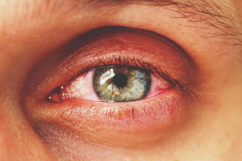Zapalenie spojówek może być jednym z objawów COVID-19 /123RF/PICSEL