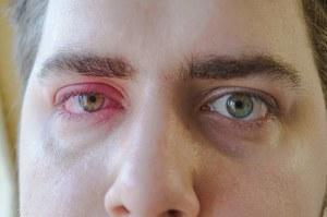 Zapalenie spojówek - przyczyny, objawy i sposoby leczenia zainfekowanego oka