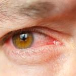 Zapalenie spojówek - przyczyny, objawy, leczenie