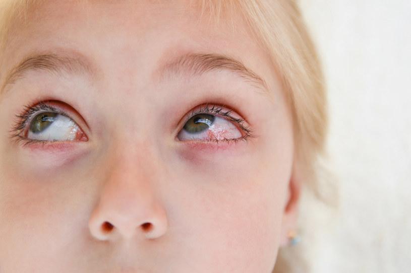 Zapalenie spojówek to jeden z głównych objawów choroby Kawasakiego /123RF/PICSEL