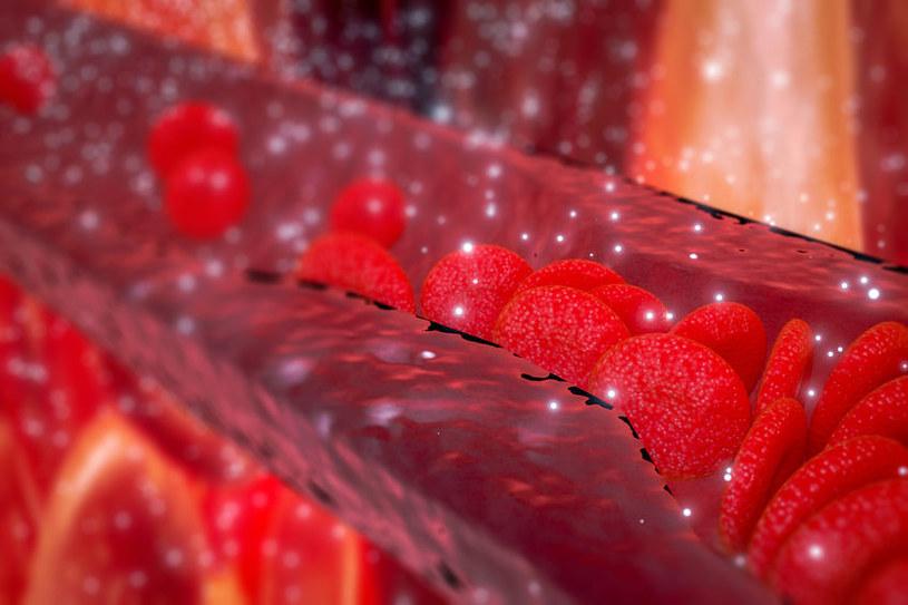 Zapalenie tętnic /©123RF/PICSEL