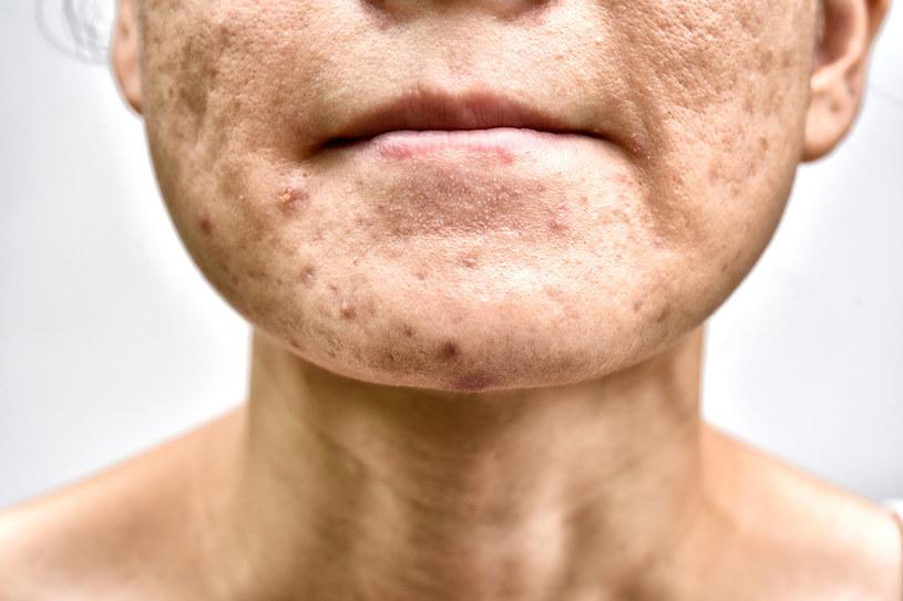 Zaskórniki i krosty u dorosłych kobiet to rzadko typowy trądzik /123RF/PICSEL