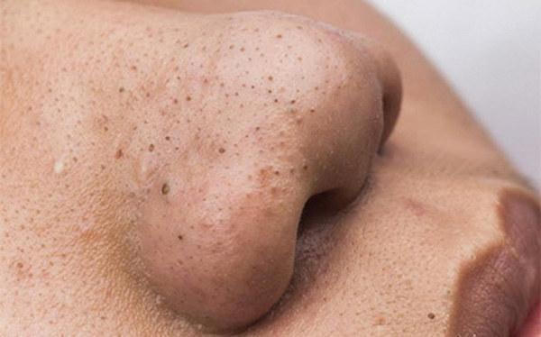 zaskórniki oczyszczanie twarzy /© Photogenica