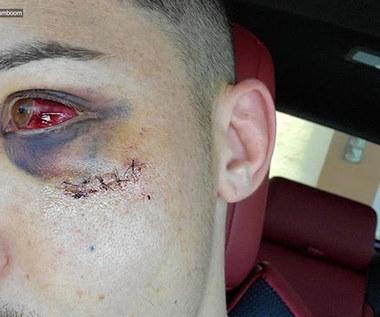 Zawodnik MMA pokazał oko po mocnym nokaucie.