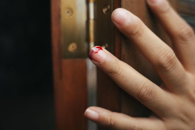 Zdecydowanie unikaj odrywania uszkodzonego paznokcia /123RF/PICSEL