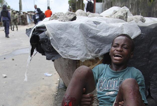 Malaria groźniejsza od eboli