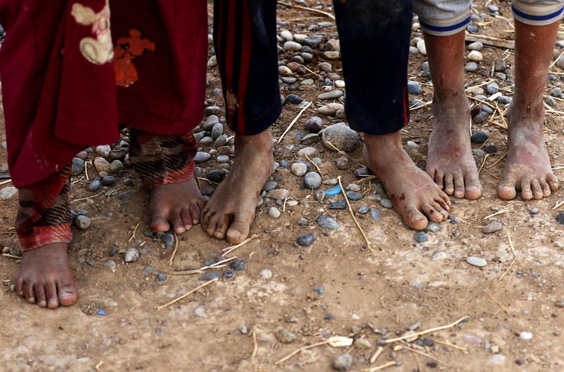 Zdjęcie ilustracyjne /SAFIN HAMED / AFP /AFP