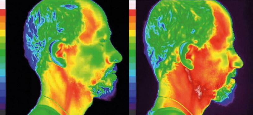 """Zdjęcie po prawej stronie przedstawia  efekty 15-minutowej rozmowy telefonicznej, w trakcie której telefon był trzymany bezpośrednio przy ciele. Podobny byłby skutek  przytrzymywania w tym miejscu dowolnego ciepłego przedmiotu. Nagrzanie tkanek jest przejściowe i nie wywołuje żadnych  długotrwałych szkodliwych efektów medycznych, zaś temperatura ciała w niedługim czasie wraca do normy. Fot. """"Biała Księga - Pole  elektromagnetyczne  a człowiek"""""""