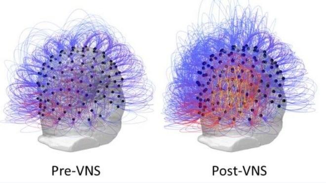 Zdjęcie pokazujące aktywność mózgu mężczyzny przed (po lewej) i po (po prawej) terapii /materiały prasowe