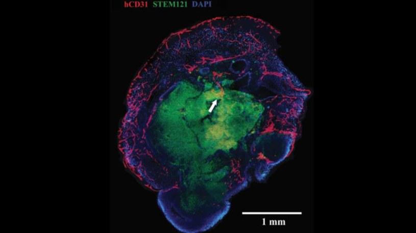 Zdjęcie pokazuje naczynia krwionośne wbudowane w organoid /materiały prasowe