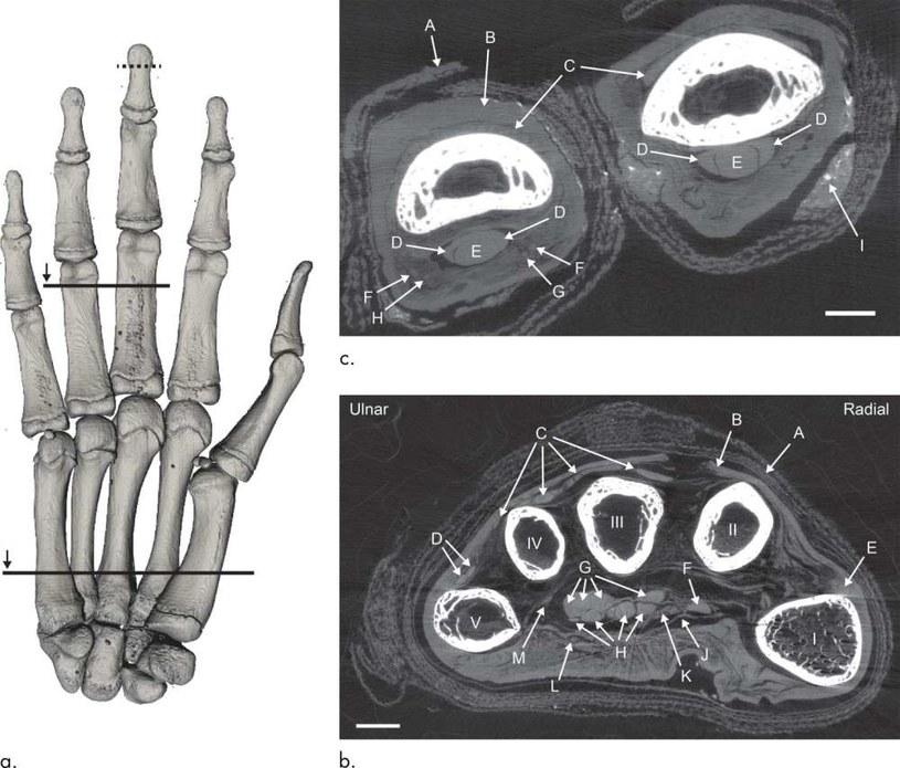 Zdjęcie rentgenowskie egipskiej mumii /materiały prasowe