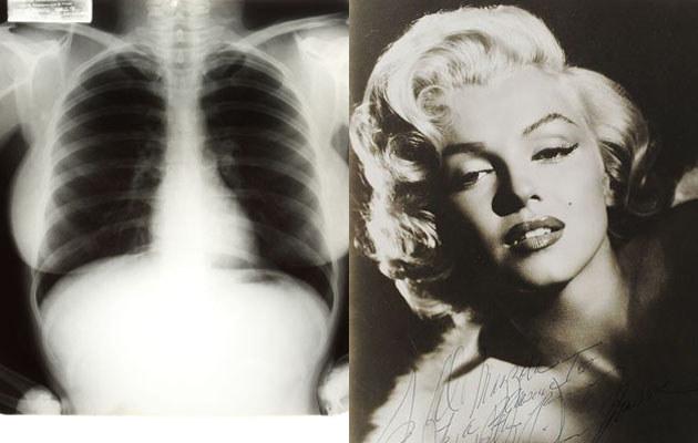 Zdjęcie rentgenowskie Marilyn Monroe  /AFP