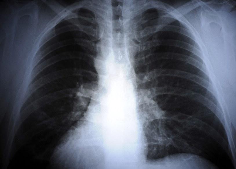 Zdjęcie rentgenowskie płuc /Donat Brykczyński /East News